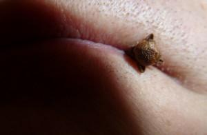 Gewürznelke im Mund