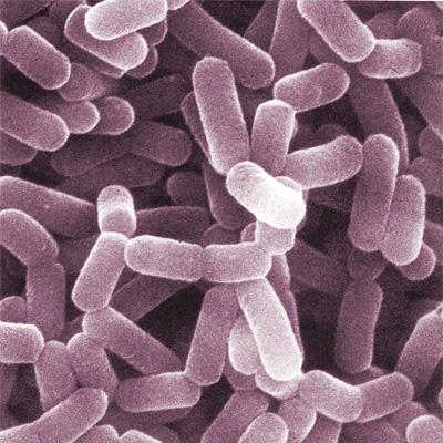 Lactobacillus casei; photo credit: CC BY-SA 2.0 by AJ Cann/flickr.com: http://bit.ly/1esNeSy