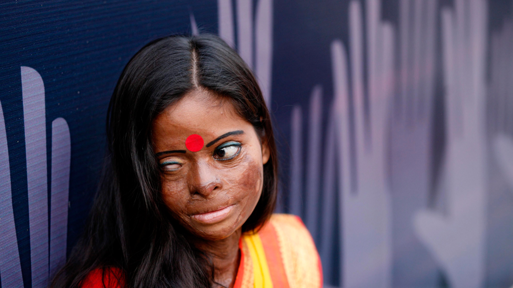 Bangladeshi acid survivor Hasina attends a campaign program to End Violence Against Women organized by a national network in Bangladesh supported by UNFPA, Bangladesh, November 24, 2010. (© picture-alliance/dpa)