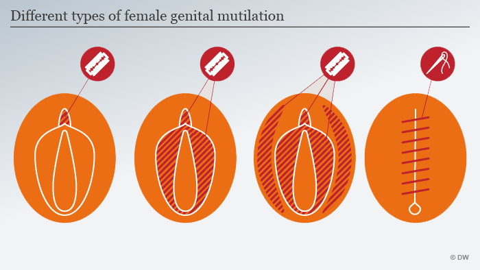 FGM-diagram